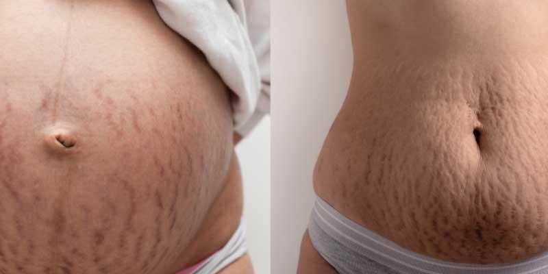 strije u trudnoći i posle nje