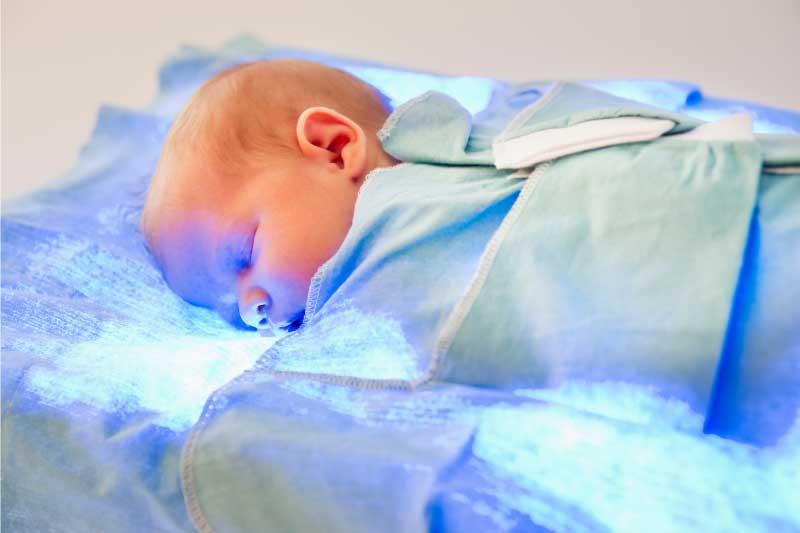 fototerapija za žuticu kod beba